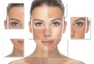 Picture of Acne Skincare at Esthetics Training